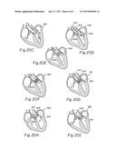ENDOLUMINAL CARDIAC AND VENOUS VALVE PROSTHESES AND METHODS OF MANUFACTURE     AND DELIVERY THEREOF diagram and image