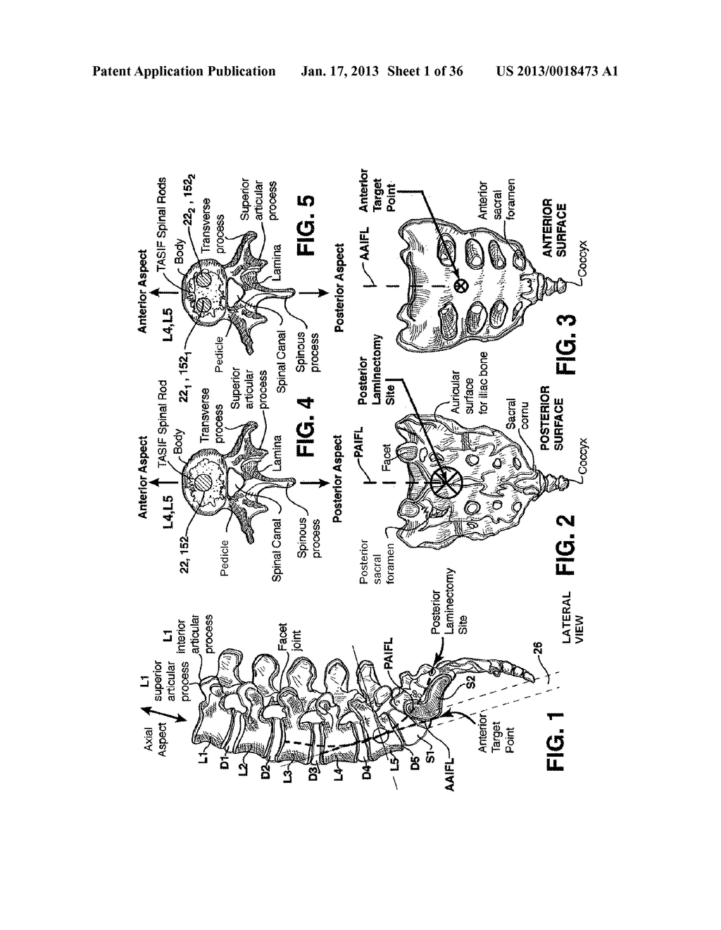 METHODS AND APPARATUS FOR PERFORMING THERAPEUTIC PROCEDURES IN THE SPINE - diagram, schematic, and image 02