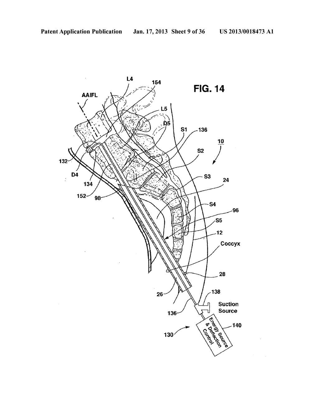 METHODS AND APPARATUS FOR PERFORMING THERAPEUTIC PROCEDURES IN THE SPINE - diagram, schematic, and image 10