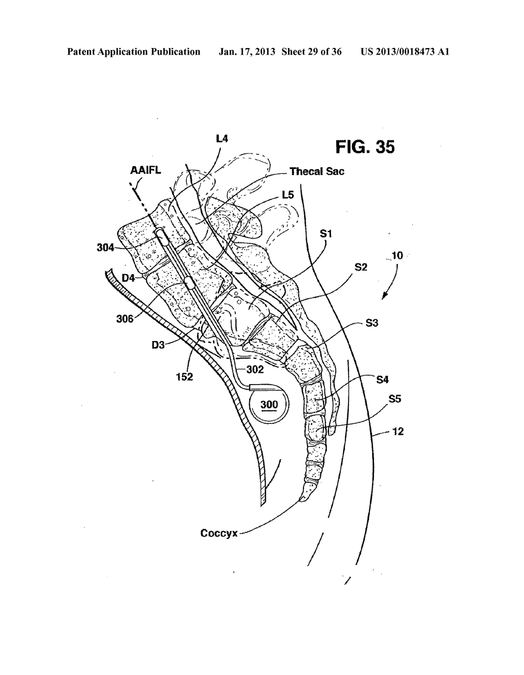METHODS AND APPARATUS FOR PERFORMING THERAPEUTIC PROCEDURES IN THE SPINE - diagram, schematic, and image 30