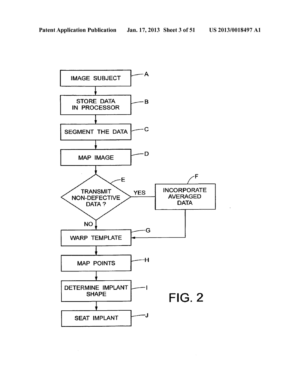 METHODS AND SYSTEMS FOR PRODUCING AN IMPLANT - diagram, schematic, and image 04