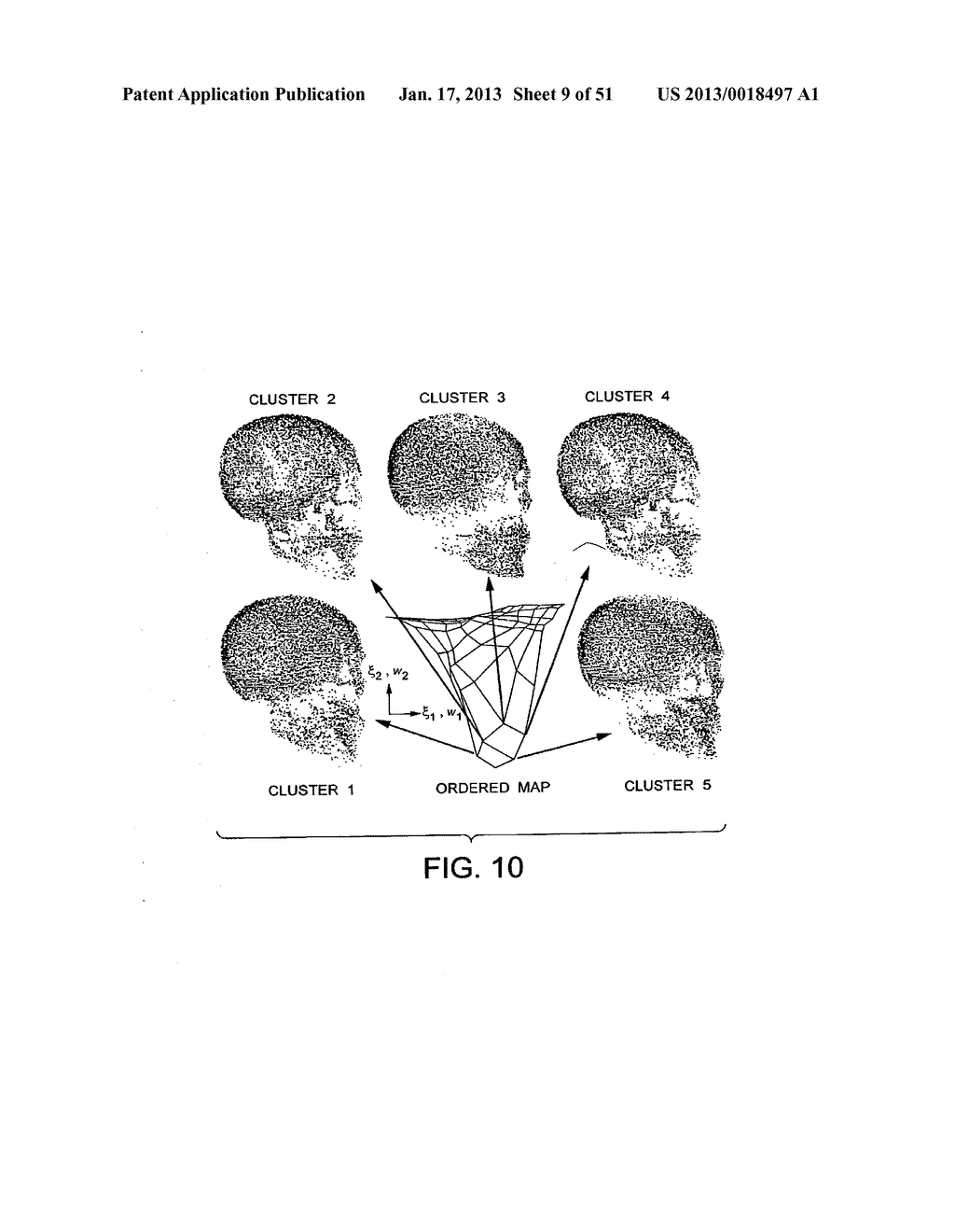 METHODS AND SYSTEMS FOR PRODUCING AN IMPLANT - diagram, schematic, and image 10