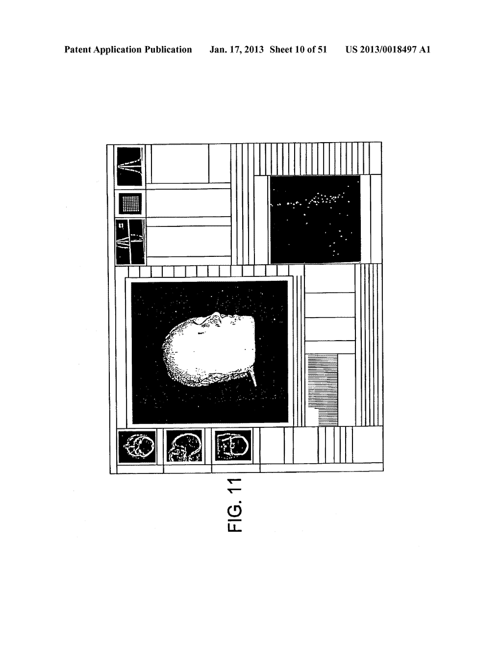 METHODS AND SYSTEMS FOR PRODUCING AN IMPLANT - diagram, schematic, and image 11