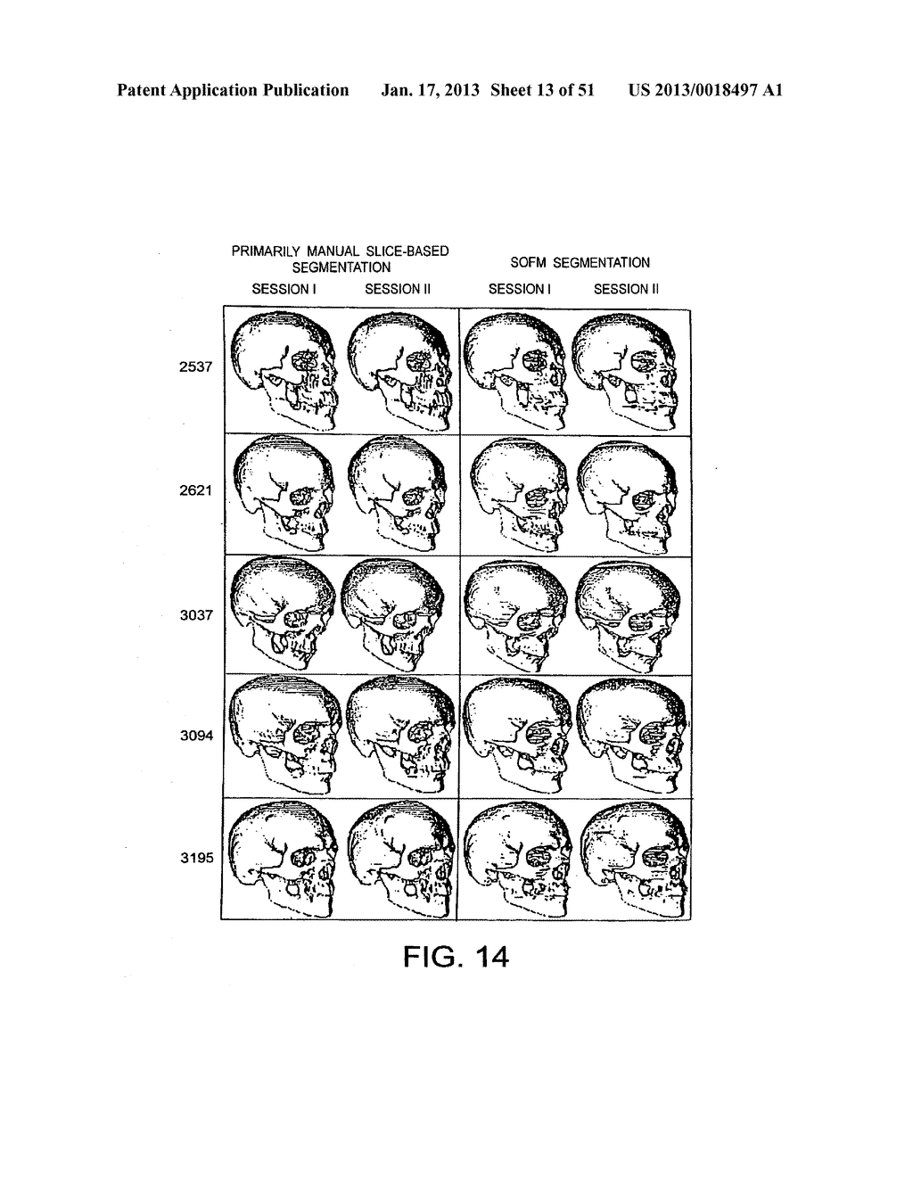 METHODS AND SYSTEMS FOR PRODUCING AN IMPLANT - diagram, schematic, and image 14