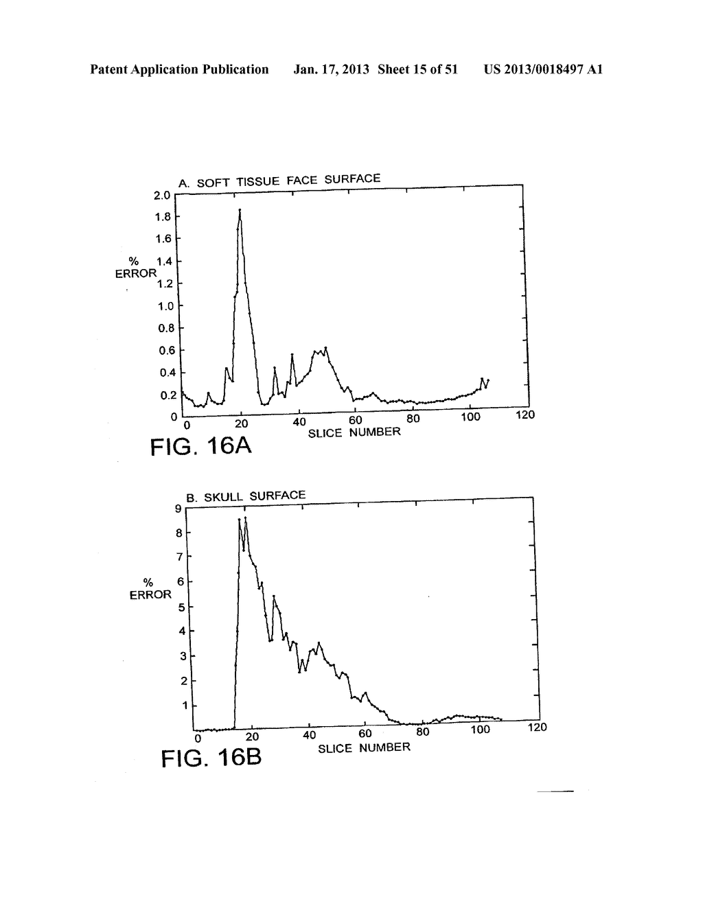 METHODS AND SYSTEMS FOR PRODUCING AN IMPLANT - diagram, schematic, and image 16
