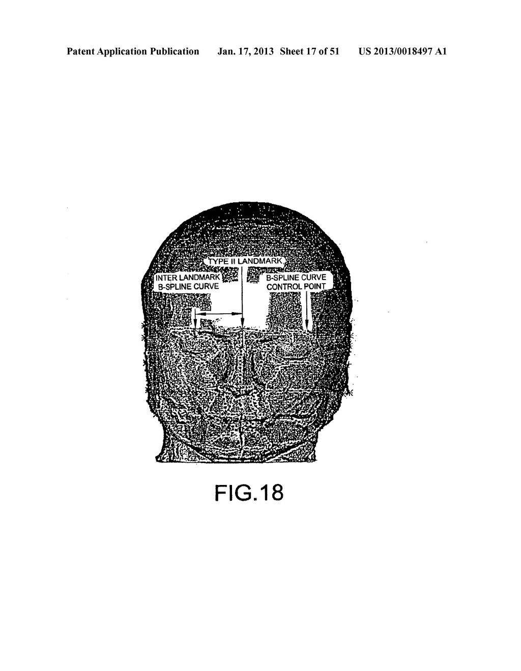 METHODS AND SYSTEMS FOR PRODUCING AN IMPLANT - diagram, schematic, and image 18