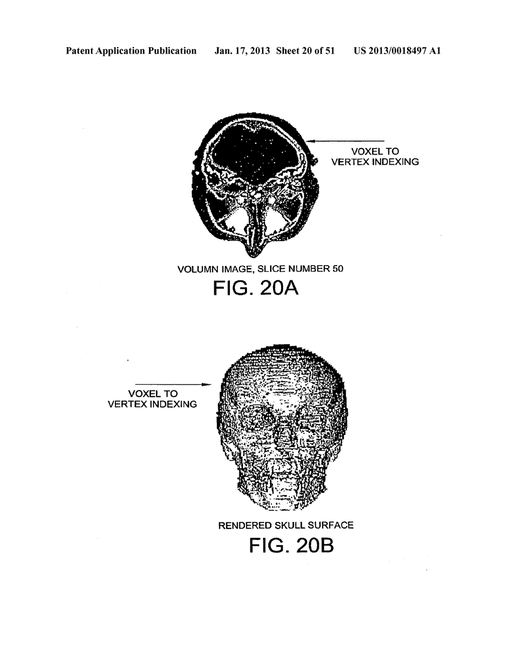 METHODS AND SYSTEMS FOR PRODUCING AN IMPLANT - diagram, schematic, and image 21