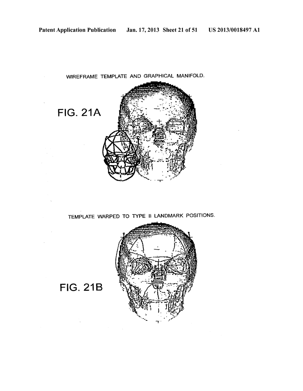 METHODS AND SYSTEMS FOR PRODUCING AN IMPLANT - diagram, schematic, and image 22