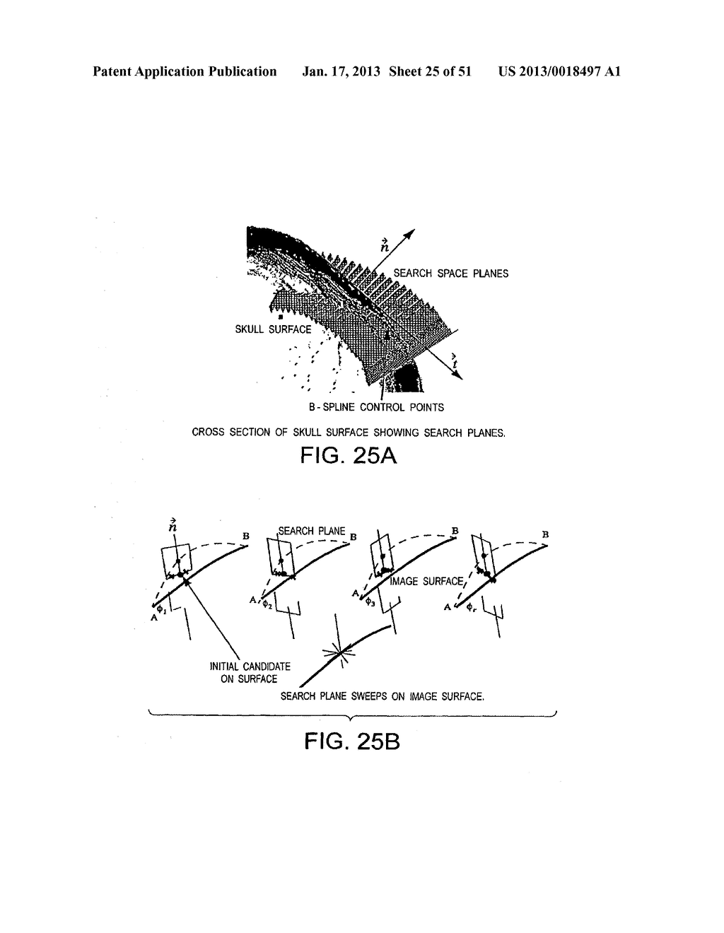 METHODS AND SYSTEMS FOR PRODUCING AN IMPLANT - diagram, schematic, and image 26