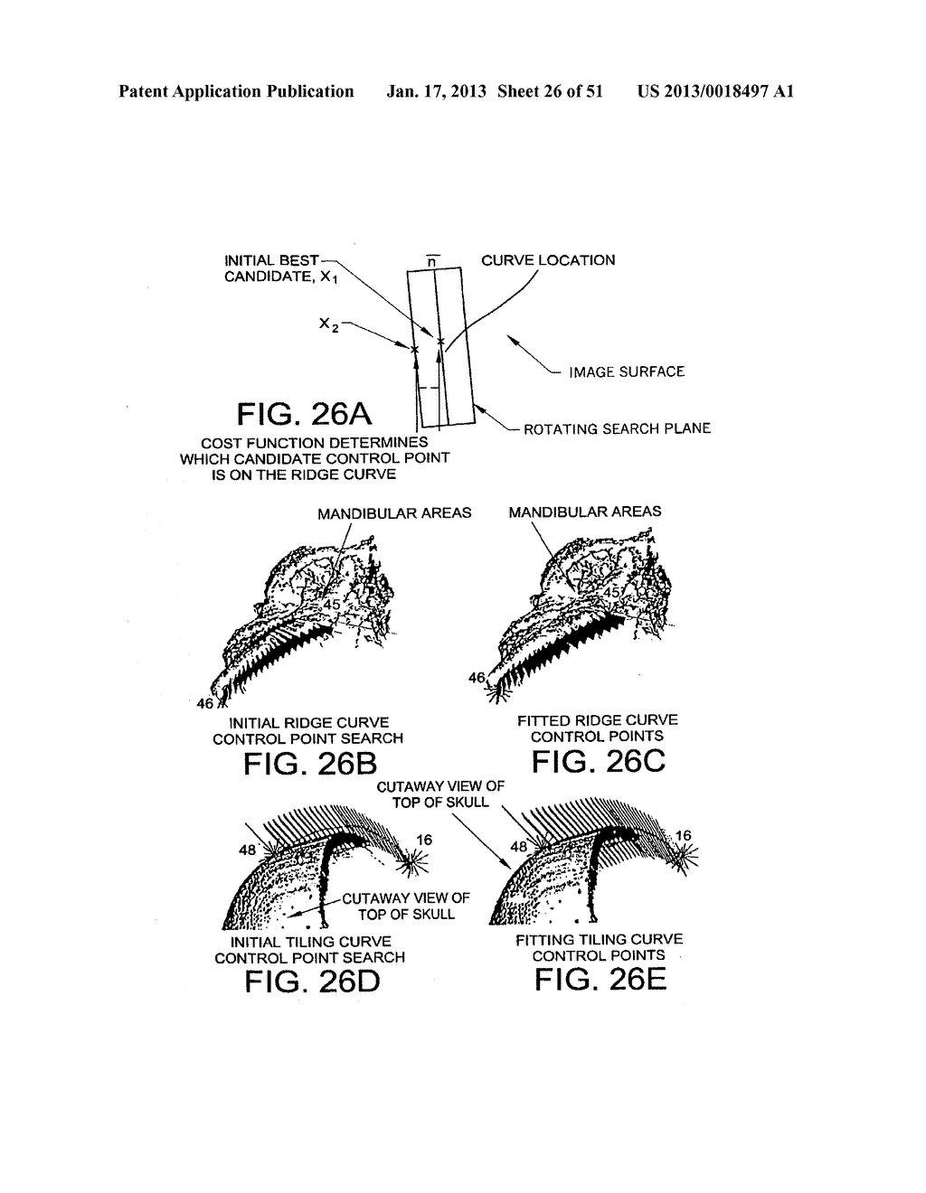 METHODS AND SYSTEMS FOR PRODUCING AN IMPLANT - diagram, schematic, and image 27