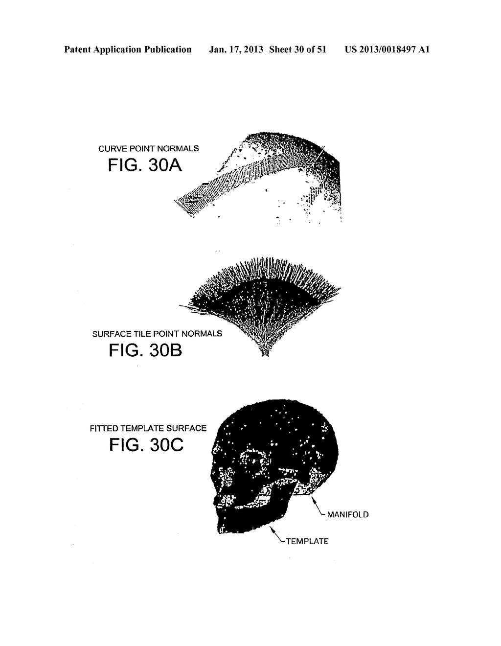METHODS AND SYSTEMS FOR PRODUCING AN IMPLANT - diagram, schematic, and image 31