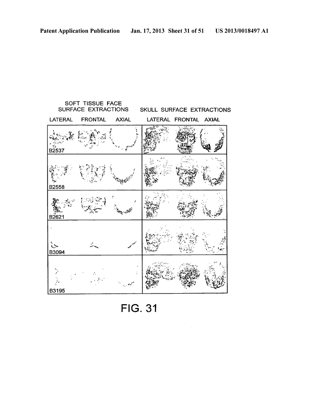 METHODS AND SYSTEMS FOR PRODUCING AN IMPLANT - diagram, schematic, and image 32