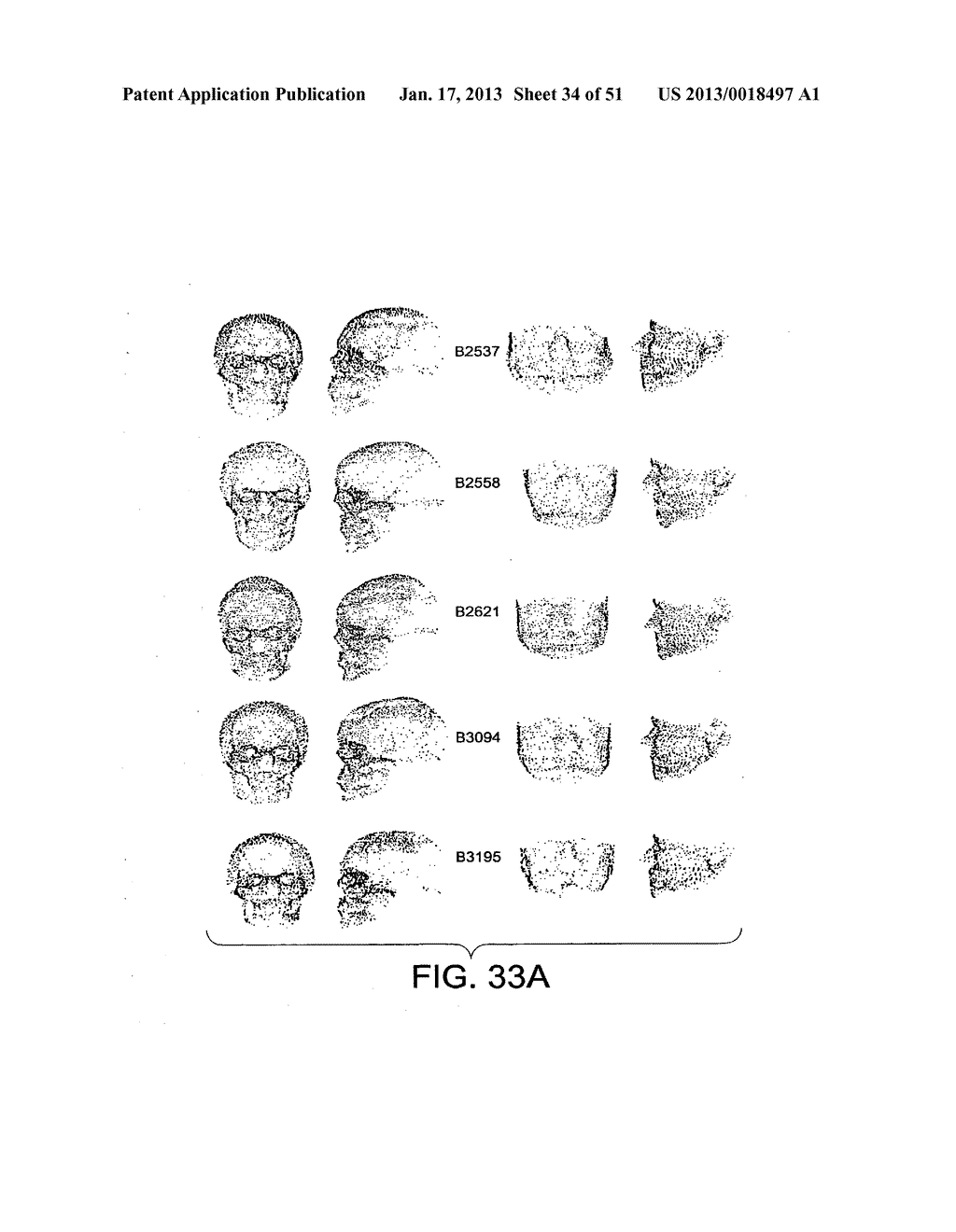 METHODS AND SYSTEMS FOR PRODUCING AN IMPLANT - diagram, schematic, and image 35
