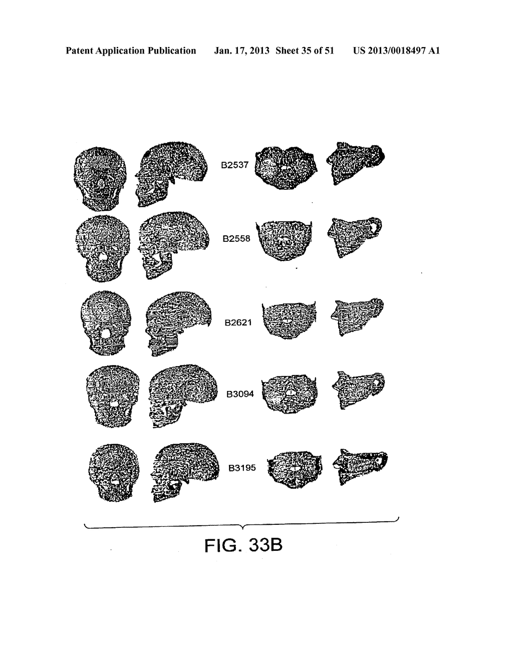 METHODS AND SYSTEMS FOR PRODUCING AN IMPLANT - diagram, schematic, and image 36