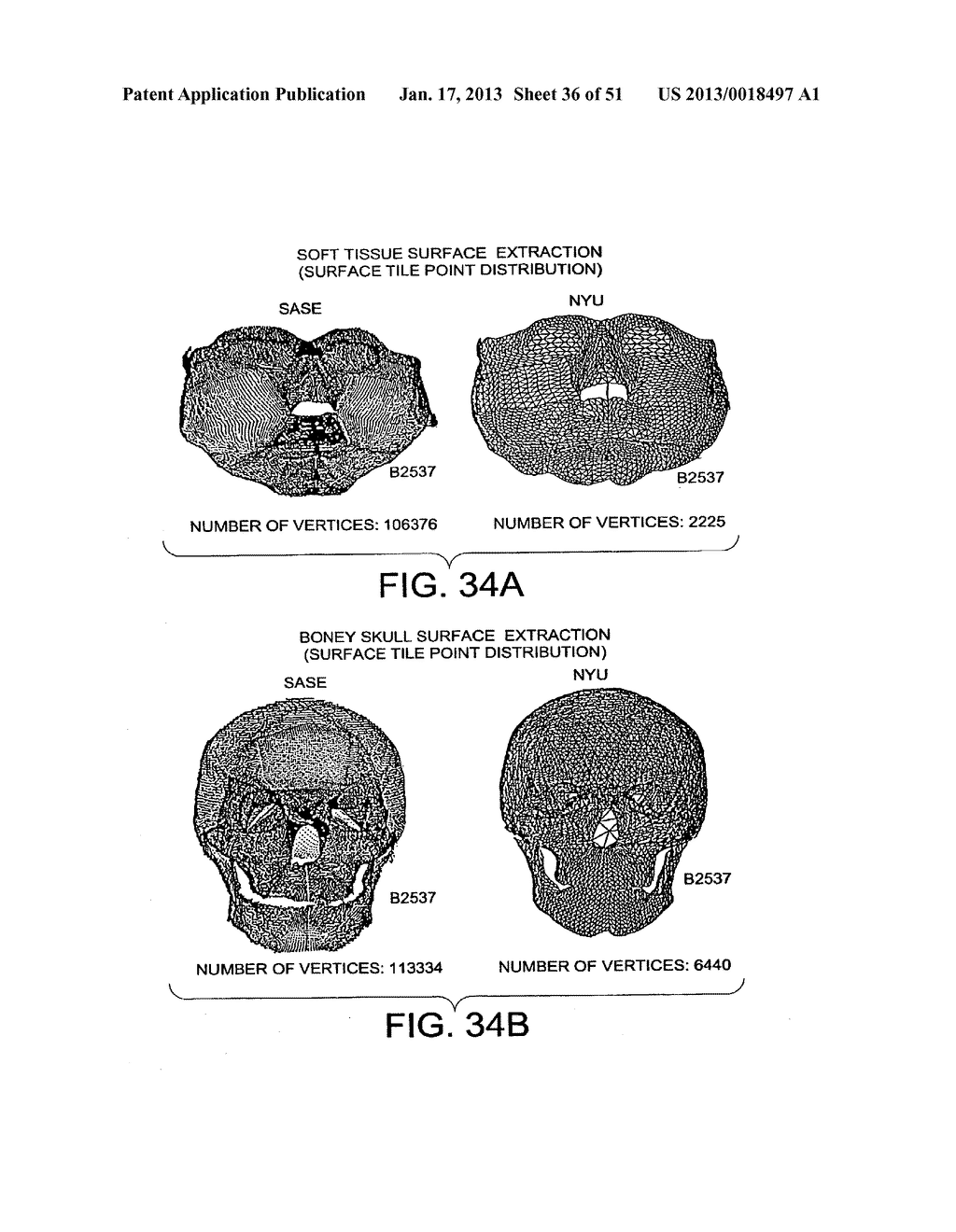METHODS AND SYSTEMS FOR PRODUCING AN IMPLANT - diagram, schematic, and image 37