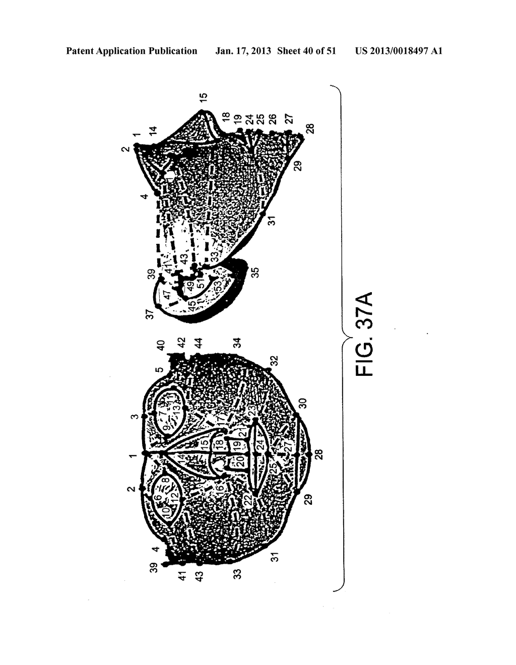 METHODS AND SYSTEMS FOR PRODUCING AN IMPLANT - diagram, schematic, and image 41