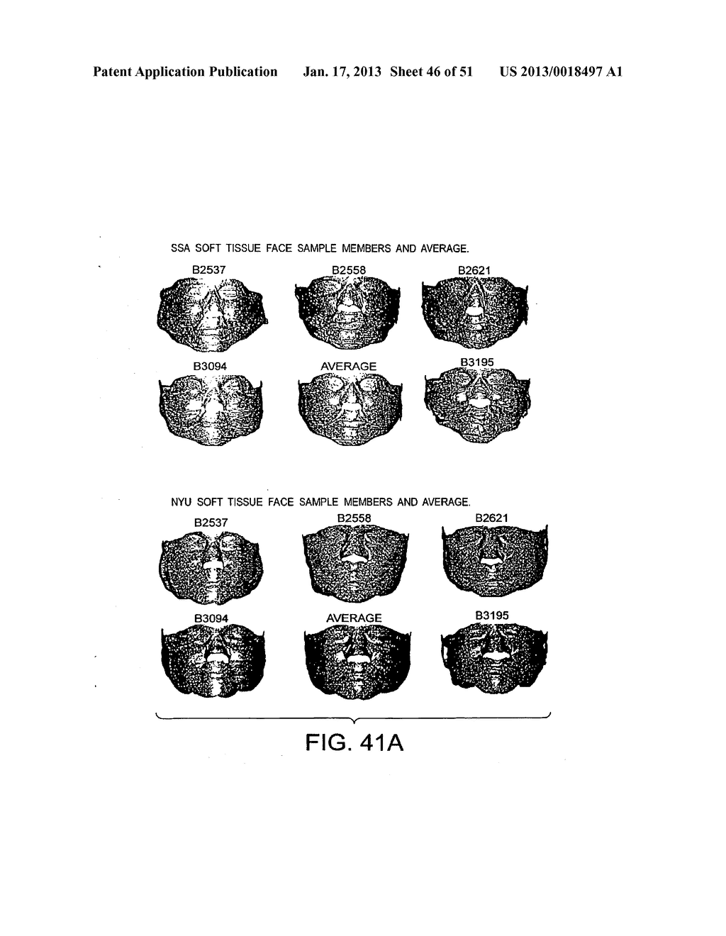 METHODS AND SYSTEMS FOR PRODUCING AN IMPLANT - diagram, schematic, and image 47