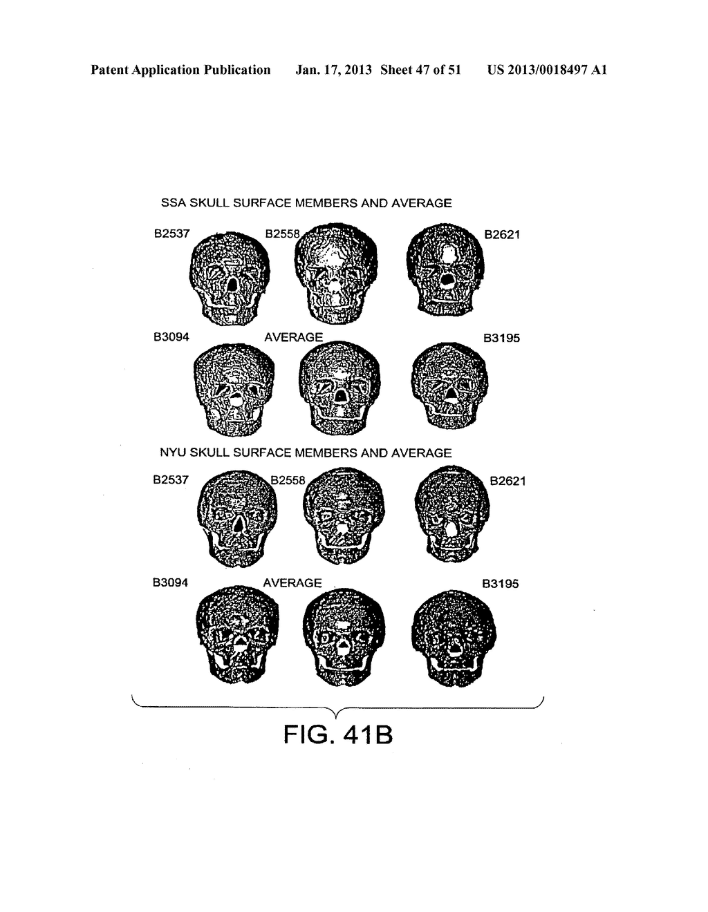 METHODS AND SYSTEMS FOR PRODUCING AN IMPLANT - diagram, schematic, and image 48