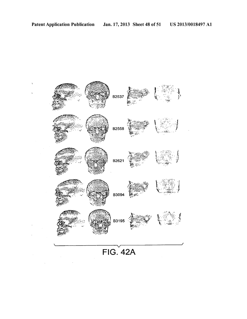 METHODS AND SYSTEMS FOR PRODUCING AN IMPLANT - diagram, schematic, and image 49