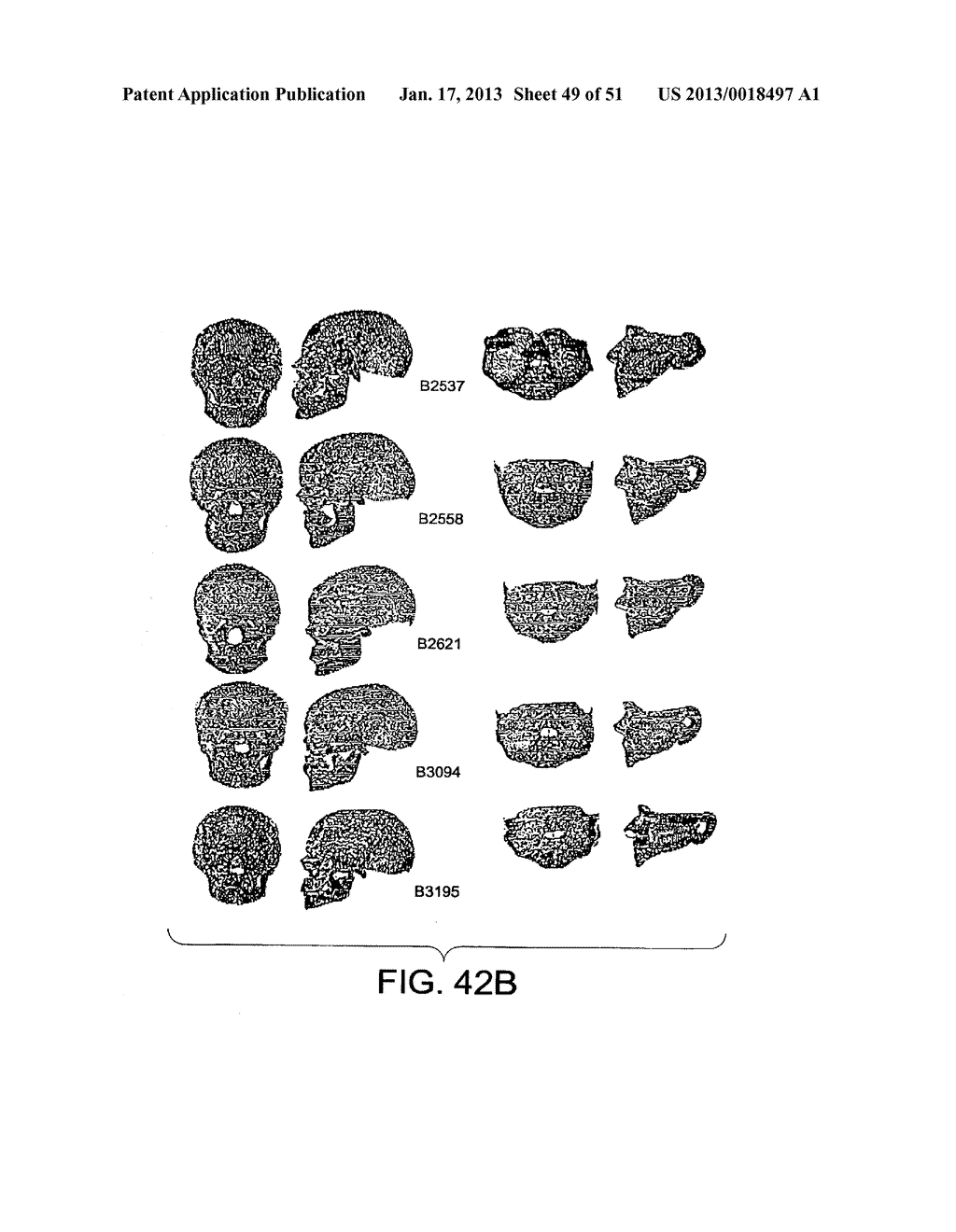 METHODS AND SYSTEMS FOR PRODUCING AN IMPLANT - diagram, schematic, and image 50