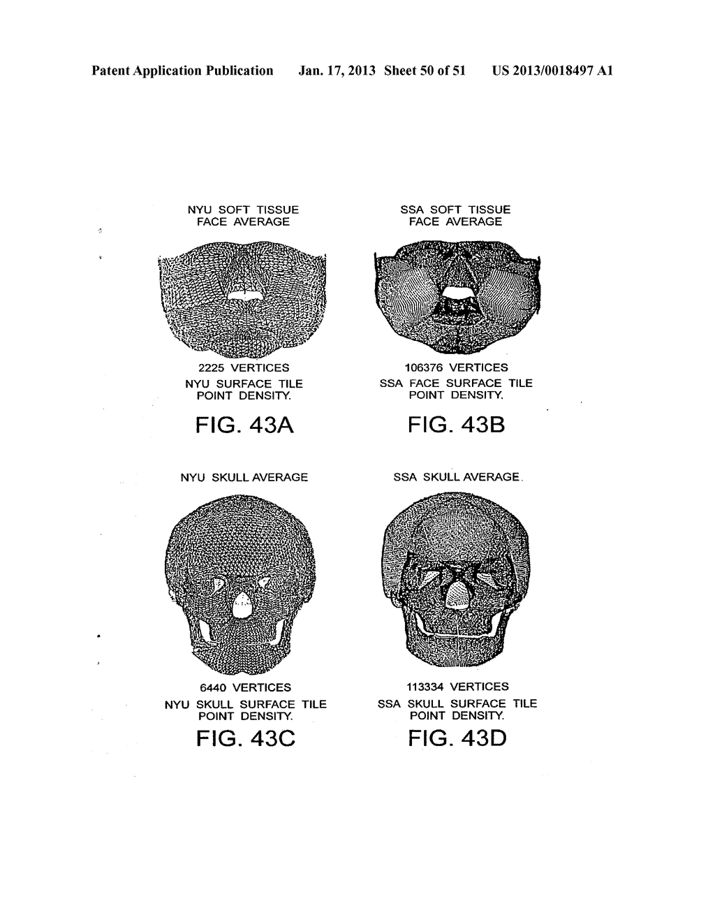 METHODS AND SYSTEMS FOR PRODUCING AN IMPLANT - diagram, schematic, and image 51
