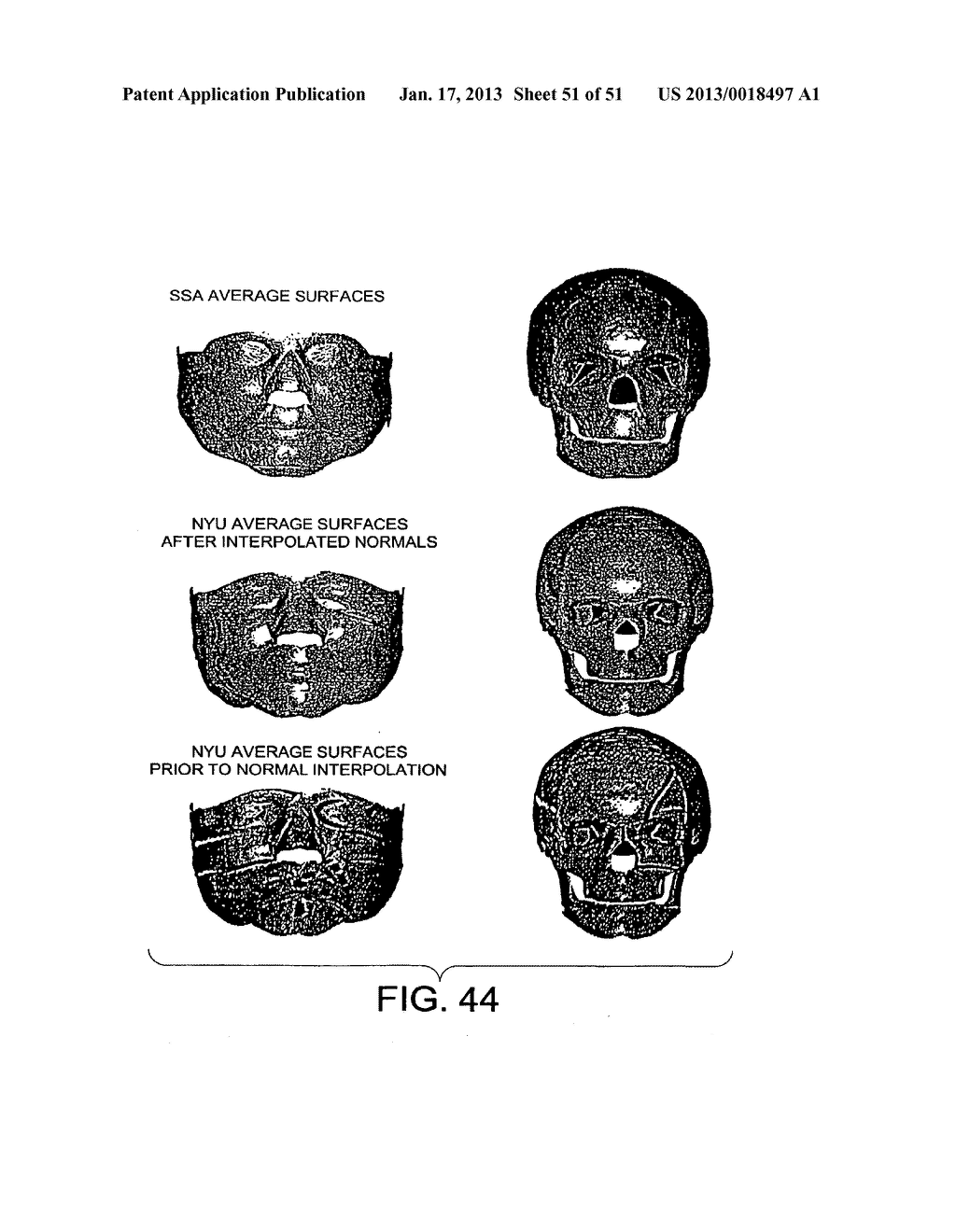 METHODS AND SYSTEMS FOR PRODUCING AN IMPLANT - diagram, schematic, and image 52