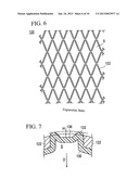 STENT DELIVERY SYSTEM AND MANUFACTURING METHOD FOR THE SAME diagram and image