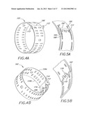 METHOD FOR TREATING AN AORTIC VALVE diagram and image
