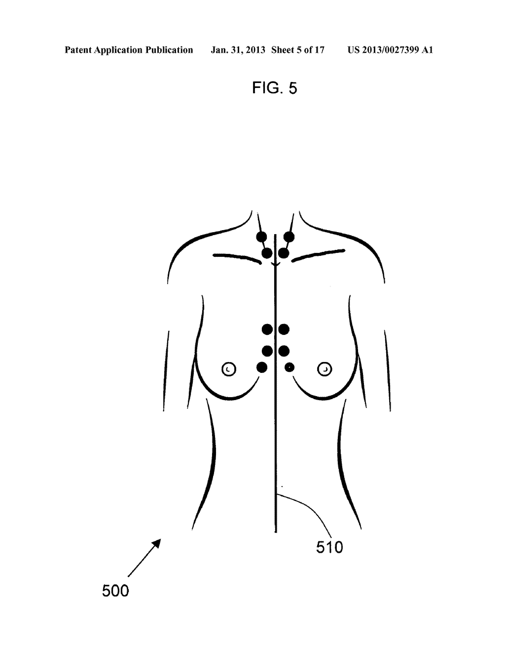 ANATOMICAL RECOGNITION, ORIENTATION AND DISPLAY OF AN UPPER TORSO TO     ASSIST BREAST SURGERY - diagram, schematic, and image 06