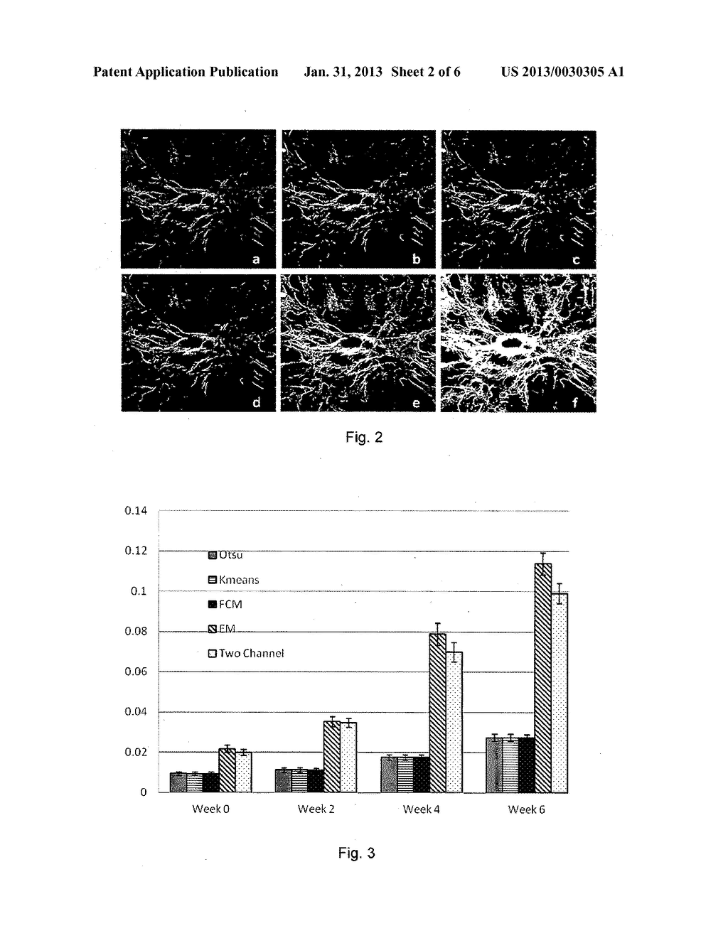 METHOD AND SYSTEM FOR DETERMINING A STAGE OF FIBROSIS IN A LIVER - diagram, schematic, and image 03