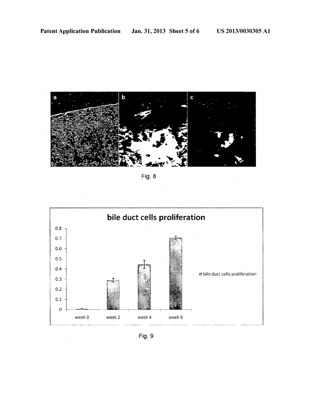 METHOD AND SYSTEM FOR DETERMINING A STAGE OF FIBROSIS IN A LIVER - diagram, schematic, and image 06