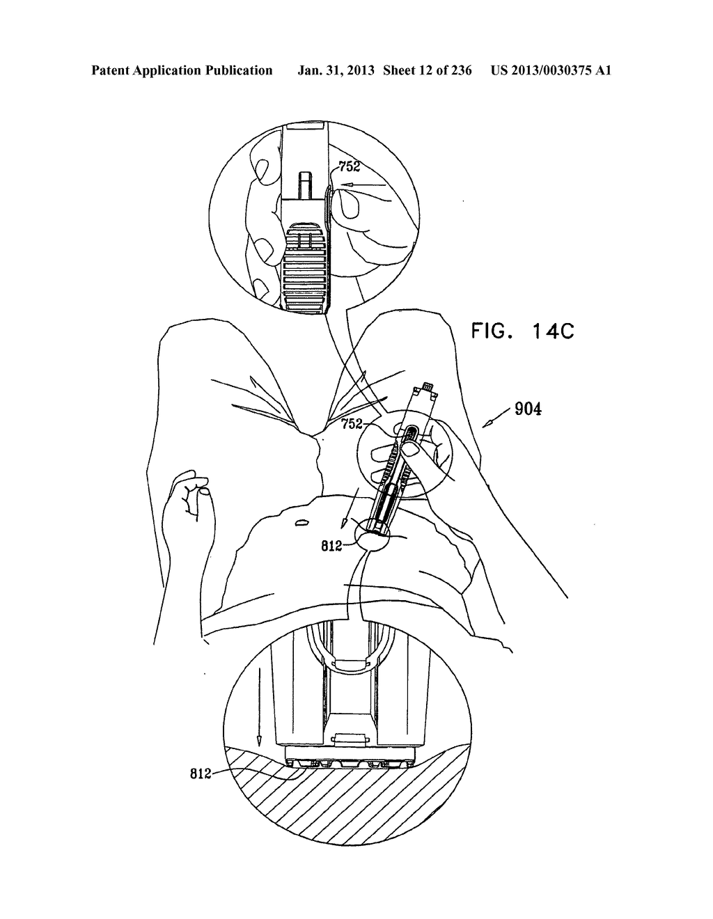 AUTOMATIC INJECTION DEVICE - diagram, schematic, and image 13