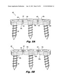 BONE PLATE ASSEMBLY WITH BONE SCREW RETENTION FEATURES diagram and image