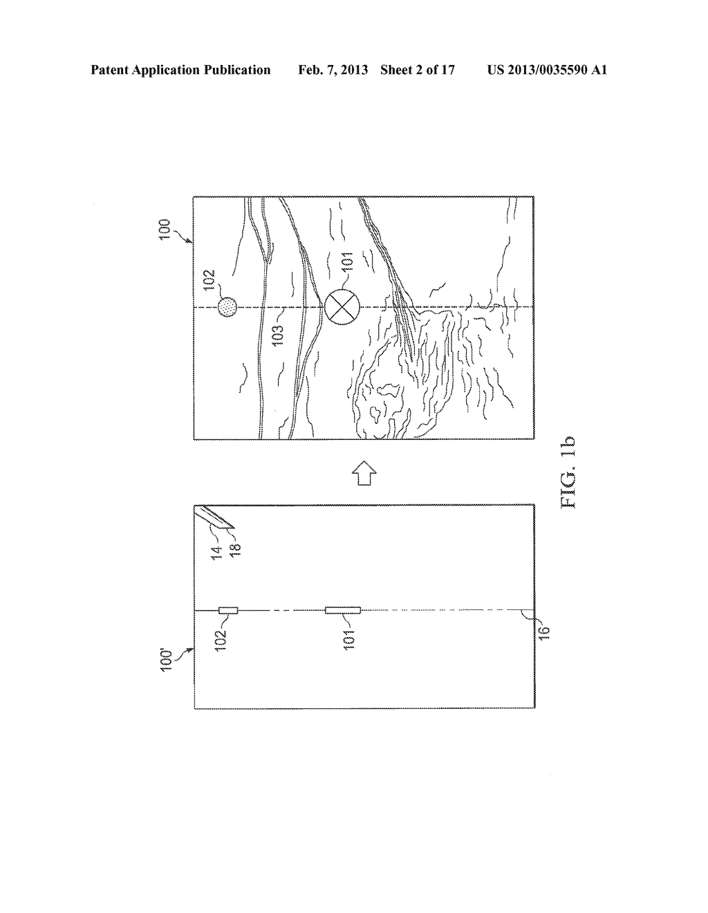 SYSTEMS AND METHODS TO ASSIST WITH INTERNAL POSITIONING OF INSTRUMENTS - diagram, schematic, and image 03
