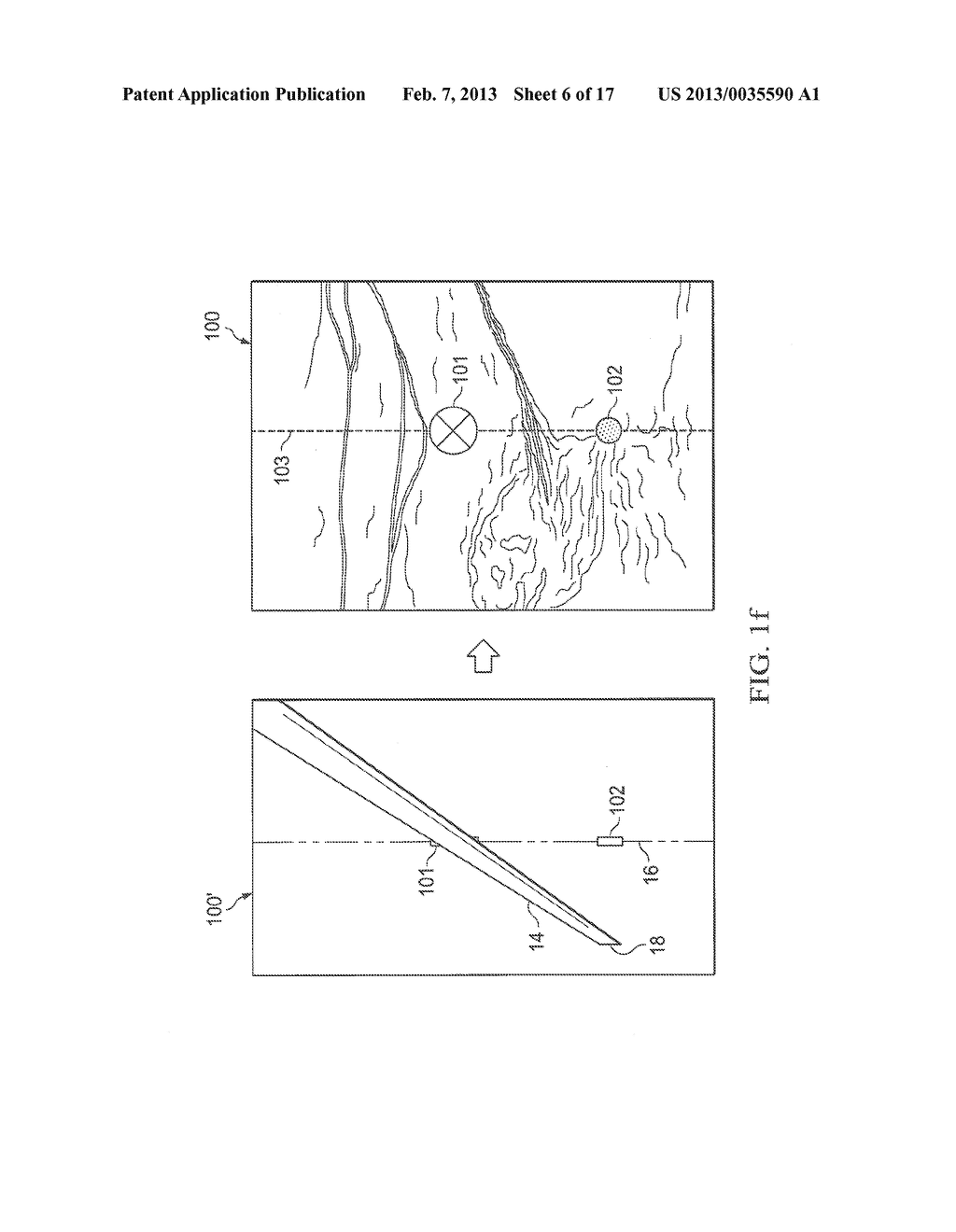 SYSTEMS AND METHODS TO ASSIST WITH INTERNAL POSITIONING OF INSTRUMENTS - diagram, schematic, and image 07