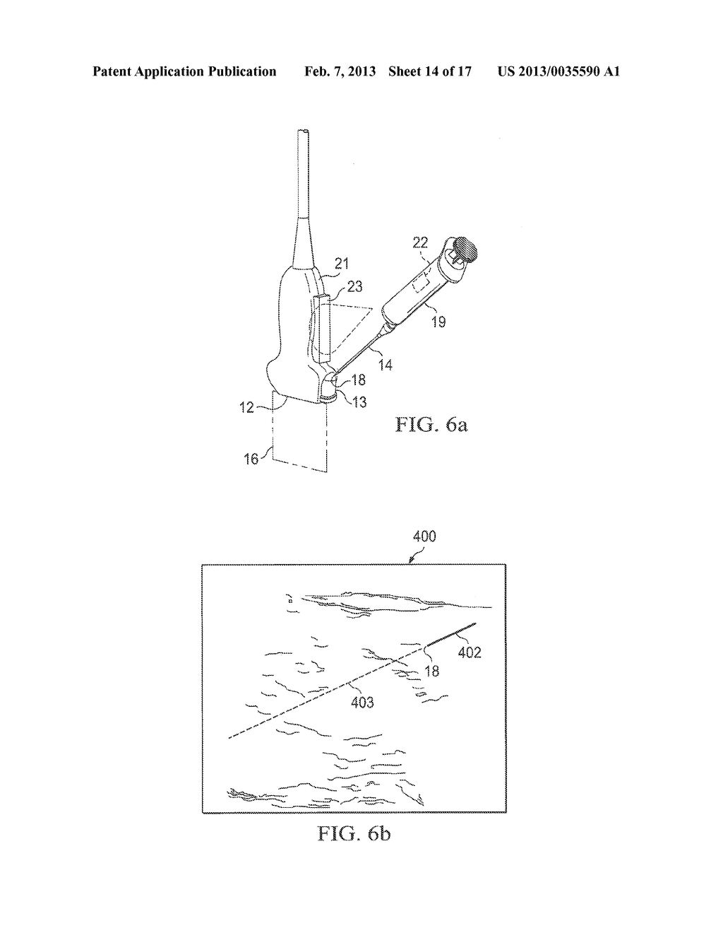 SYSTEMS AND METHODS TO ASSIST WITH INTERNAL POSITIONING OF INSTRUMENTS - diagram, schematic, and image 15