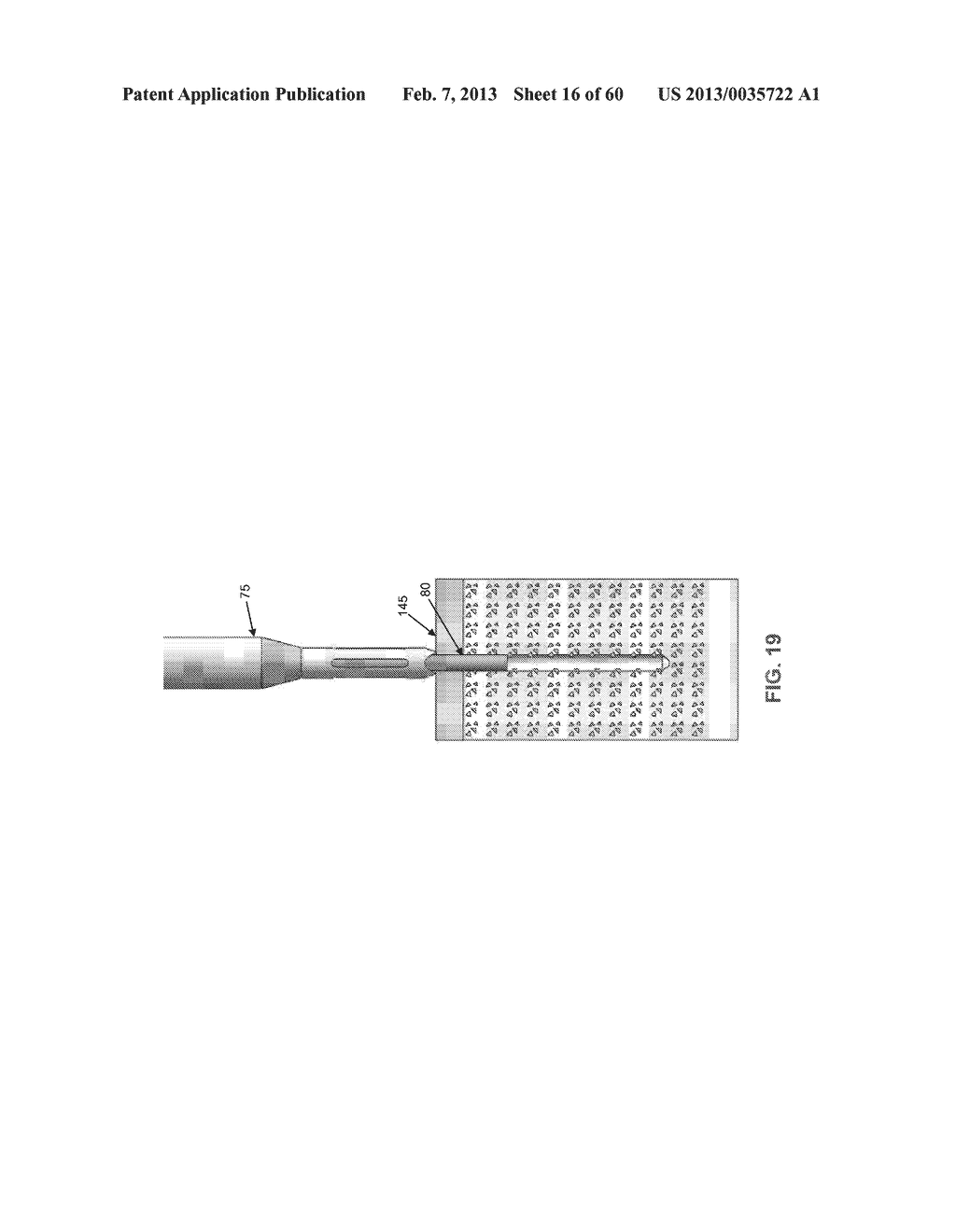 METHOD AND APPARATUS FOR SECURING AN OBJECT TO BONE, INCLUDING THE     PROVISION AND USE OF A NOVEL SUTURE ASSEMBLY FOR SECURING AN OBJECT TO     BONE - diagram, schematic, and image 17