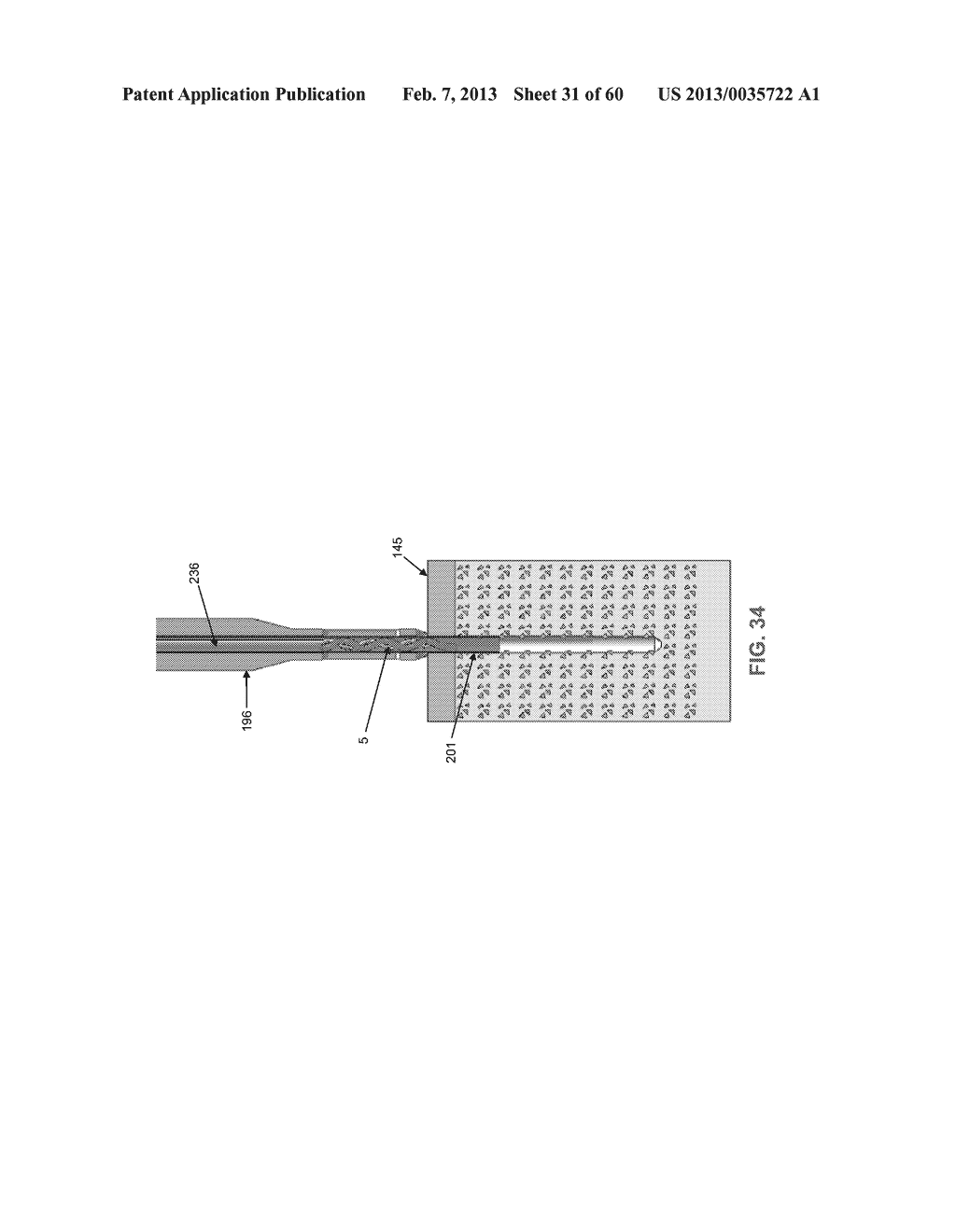 METHOD AND APPARATUS FOR SECURING AN OBJECT TO BONE, INCLUDING THE     PROVISION AND USE OF A NOVEL SUTURE ASSEMBLY FOR SECURING AN OBJECT TO     BONE - diagram, schematic, and image 32