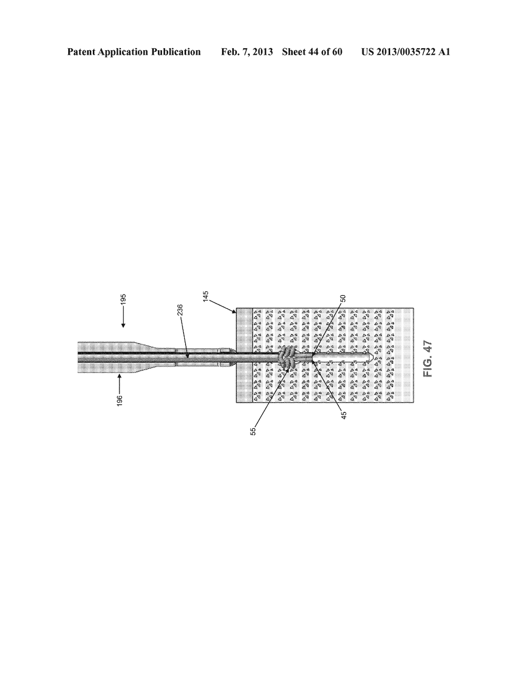 METHOD AND APPARATUS FOR SECURING AN OBJECT TO BONE, INCLUDING THE     PROVISION AND USE OF A NOVEL SUTURE ASSEMBLY FOR SECURING AN OBJECT TO     BONE - diagram, schematic, and image 45
