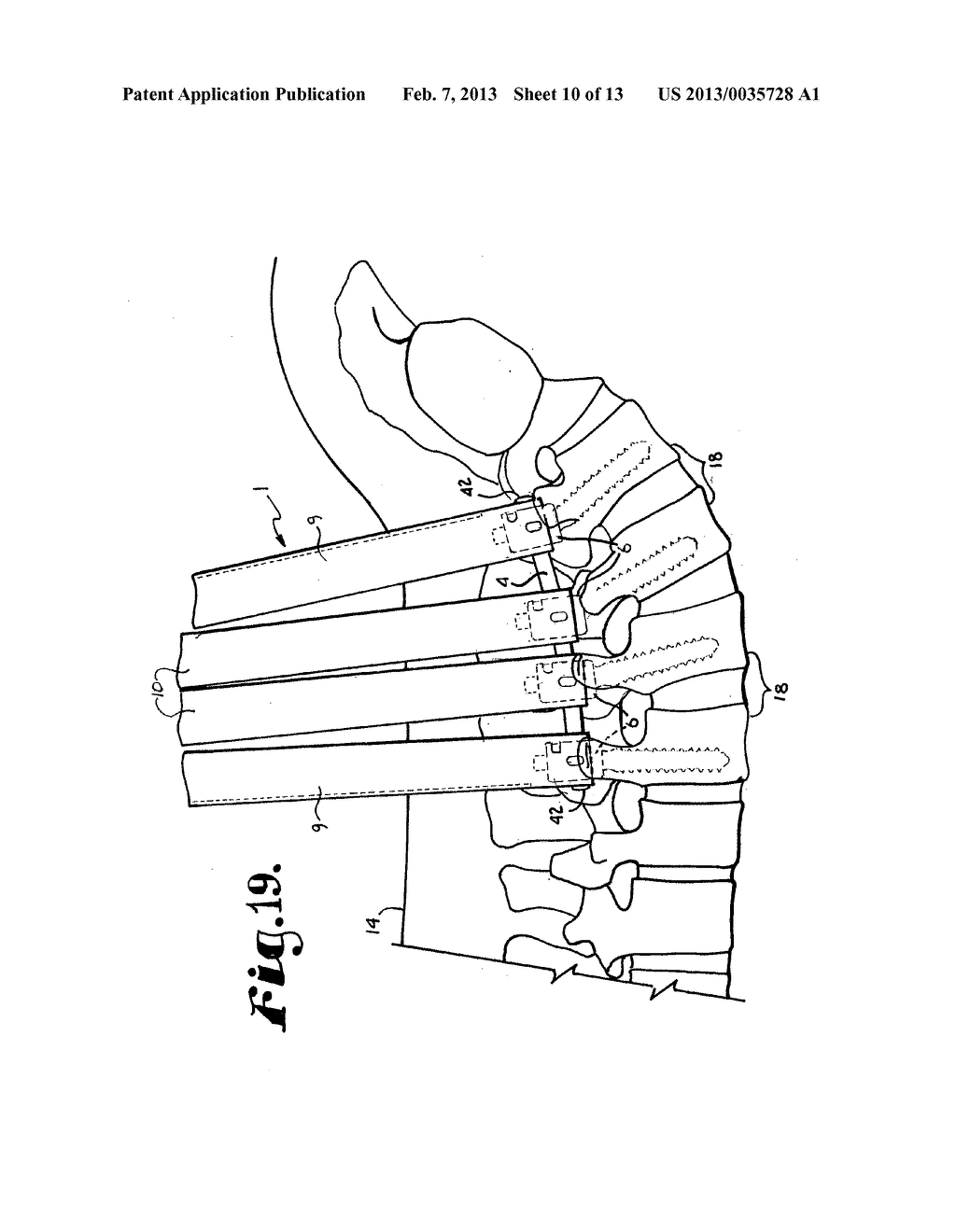 Orthopedic implant rod reduction tool set and method - diagram, schematic, and image 11