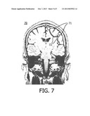 SYSTEM AND METHOD FOR PLANNING A NEUROSURGICAL OPERATION diagram and image
