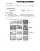 METHOD OF TREATING ACUTE MYELOGENOUS LEUKEMIA diagram and image
