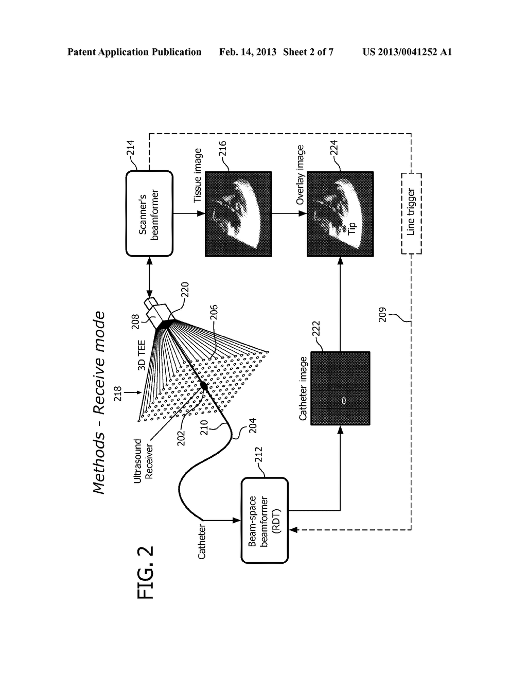 ULTRASONIC TRACKING OF ULTRASOUND TRANSDUCER(S) ABOARD AN INTERVENTIONAL     TOOL - diagram, schematic, and image 03