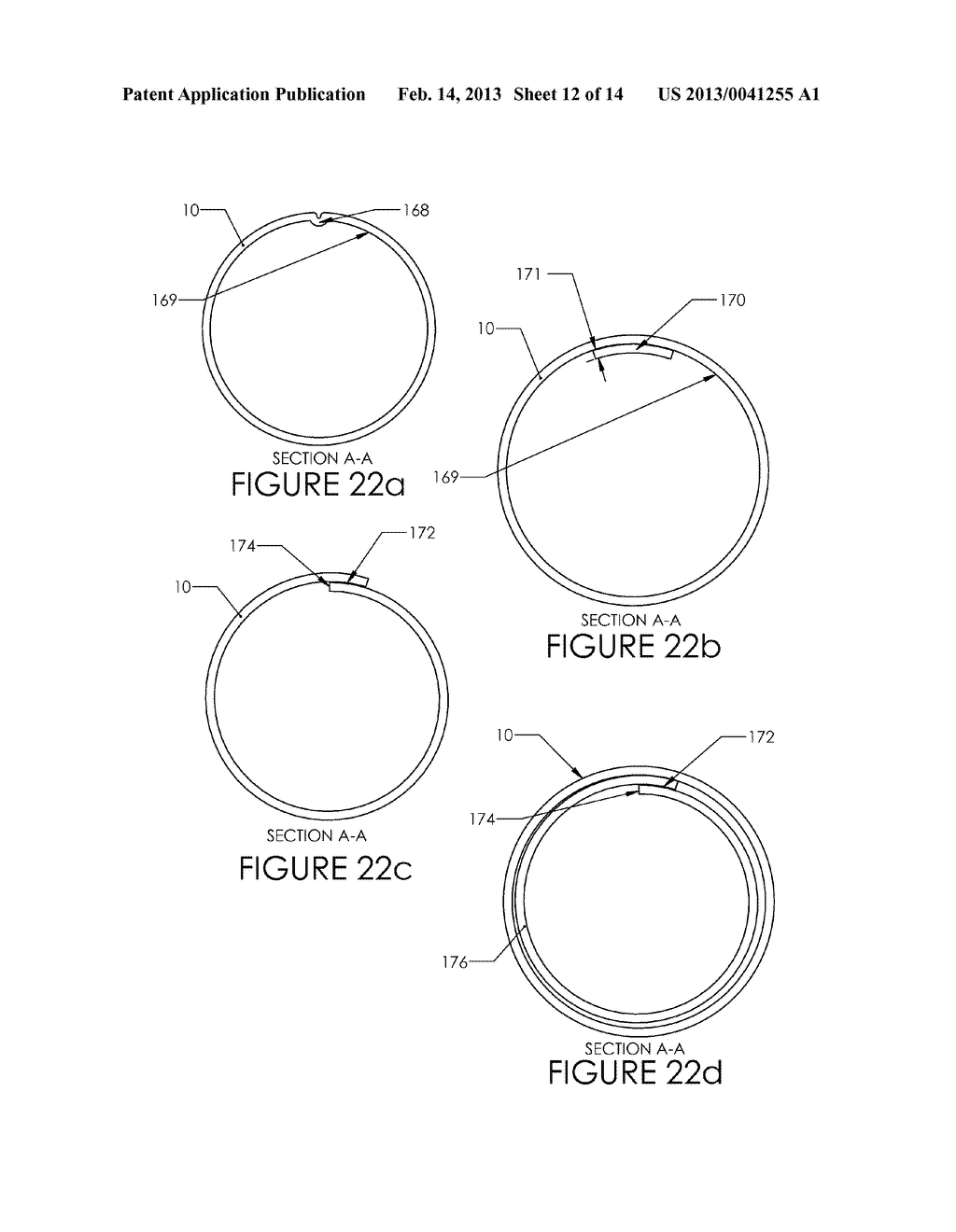 Tissue Removal Device and Method of Use - diagram, schematic, and image 13