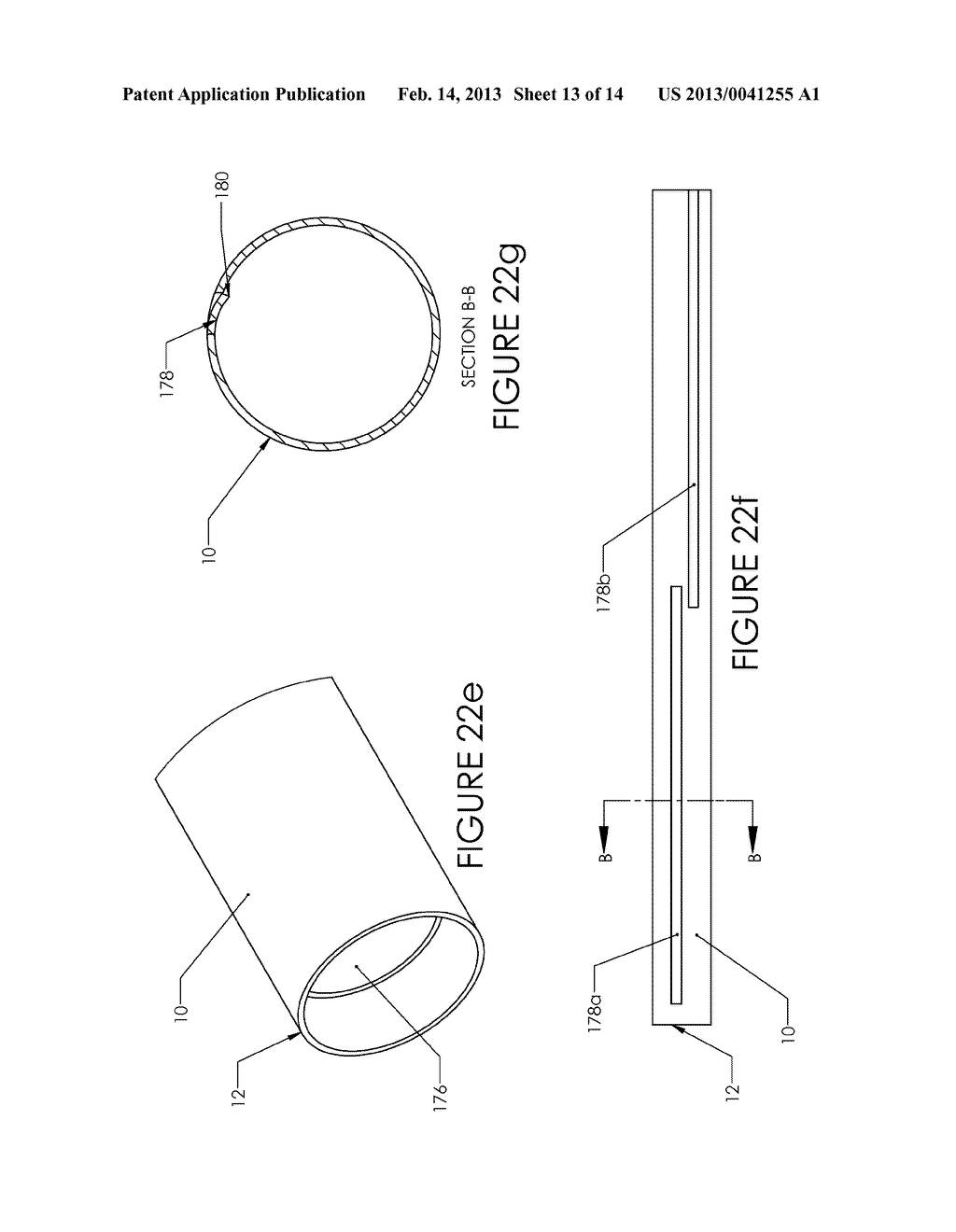 Tissue Removal Device and Method of Use - diagram, schematic, and image 14