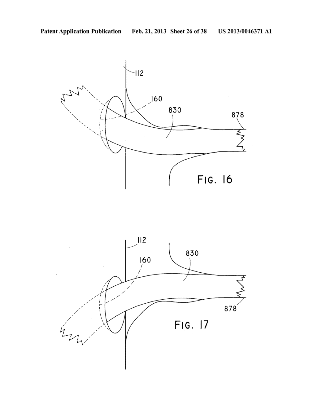 ENDOLUMINAL PROSTHESIS HAVING MULTIPLE BRANCHES OR FENESTRATIONS AND     METHODS OF DEPLOYMENT - diagram, schematic, and image 27