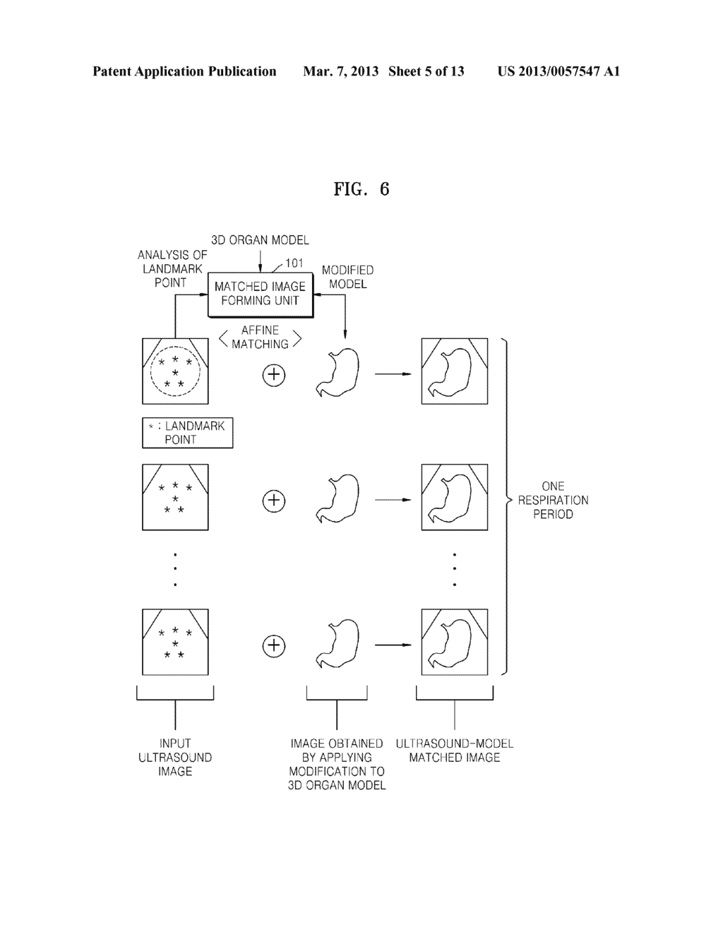 METHOD AND APPARATUS FOR GENERATING AN IMAGE OF AN ORGAN - diagram, schematic, and image 06