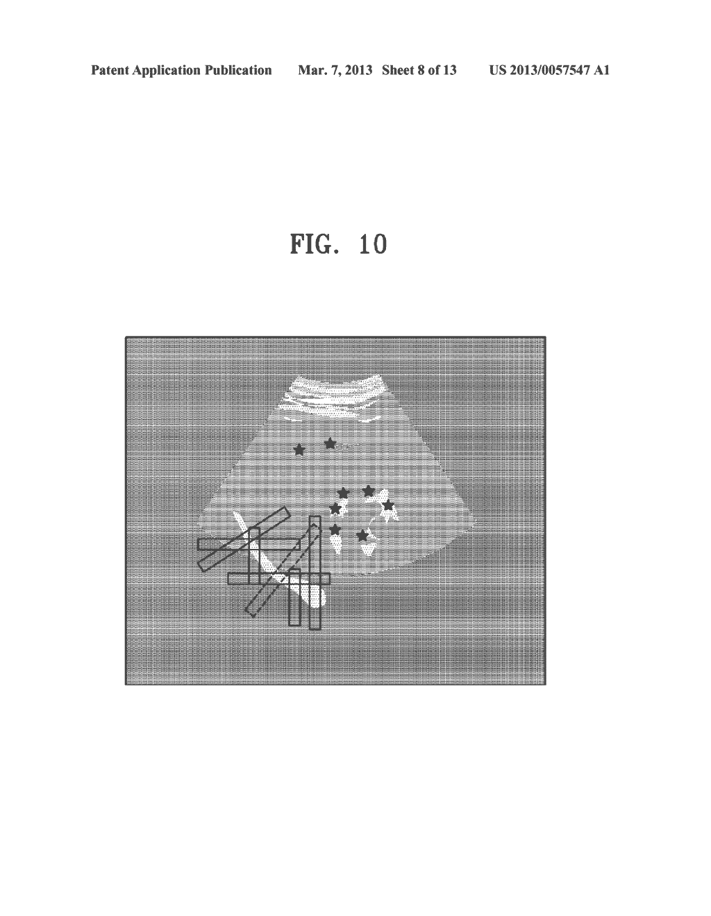 METHOD AND APPARATUS FOR GENERATING AN IMAGE OF AN ORGAN - diagram, schematic, and image 09