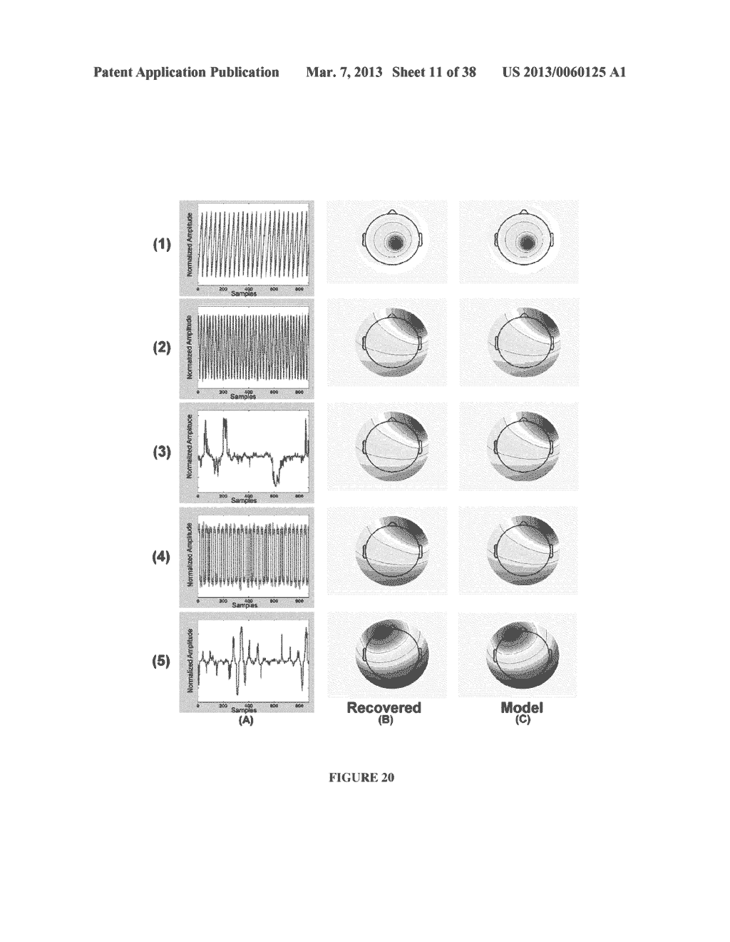 ENCEPHALOGRAPHY METHOD AND APPARATUS INCORPORATING INDEPENDENT COMPONENT     ANALYSIS AND A SPECTRAL SHAPING FILTER - diagram, schematic, and image 12