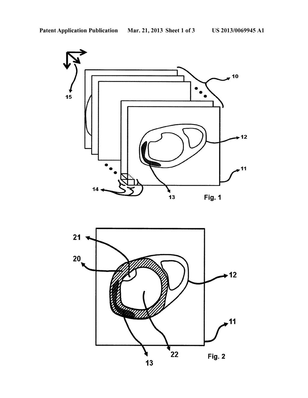 METHOD FOR DISPLAYING THE INFORMATION CONTAINED IN THREE-DIMENSIONAL     IMAGES OF THE HEART - diagram, schematic, and image 02